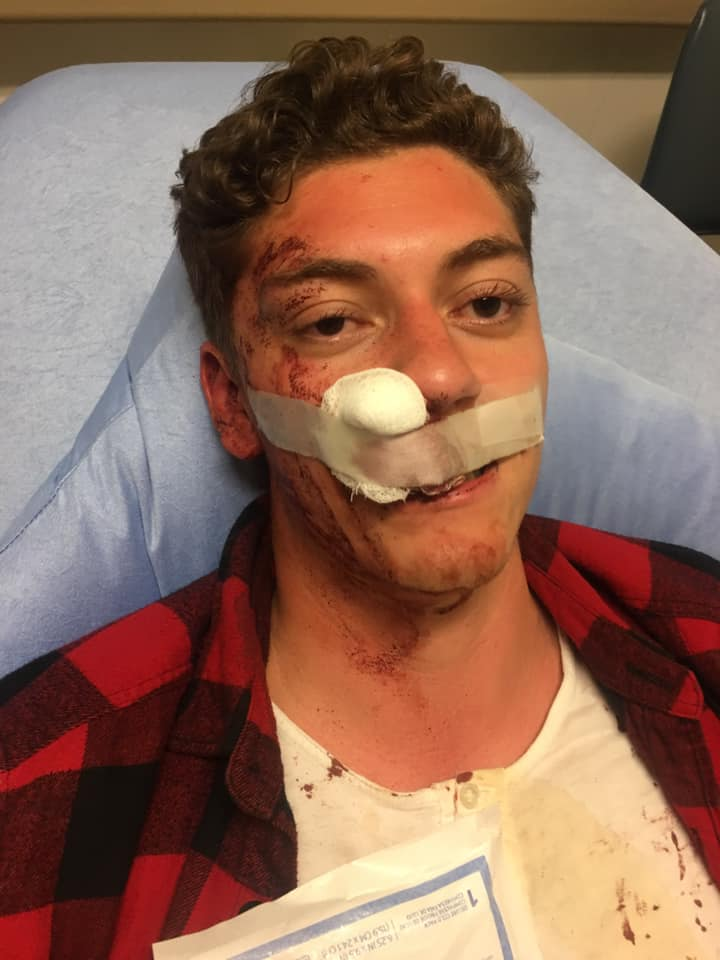Traumatizing Man Says He Was Beaten By Security Guards